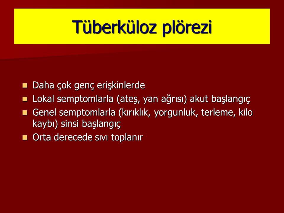 Tüberküloz plörezi Daha çok genç erişkinlerde