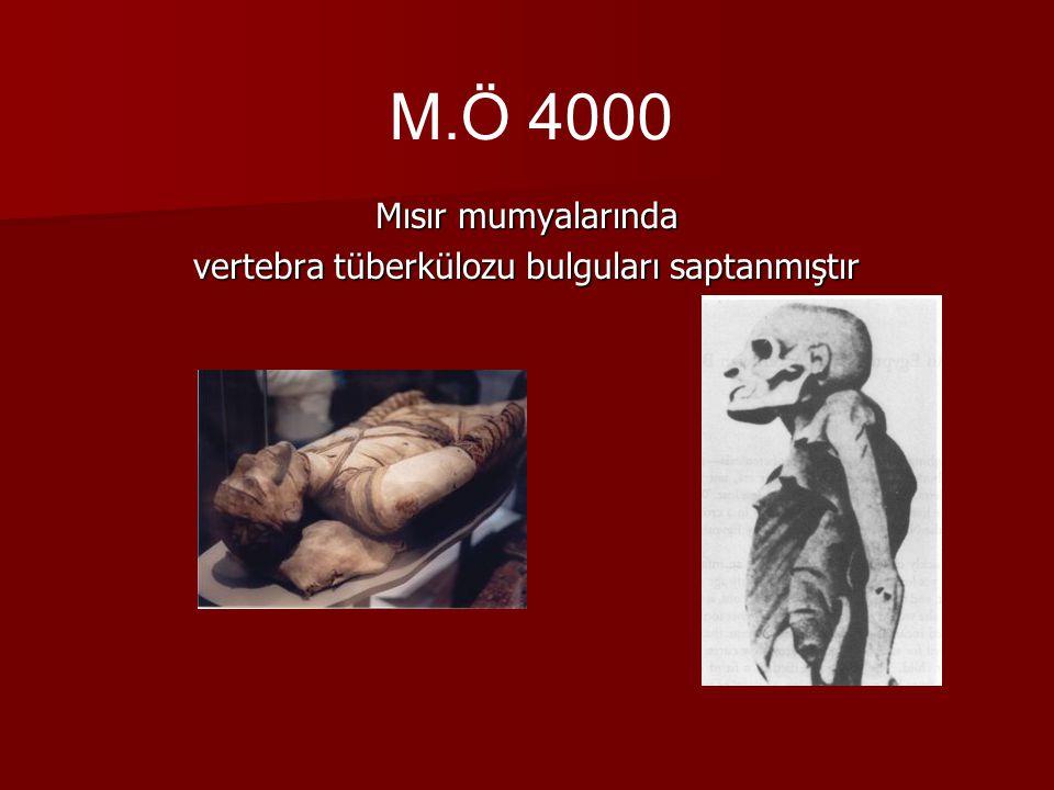 vertebra tüberkülozu bulguları saptanmıştır