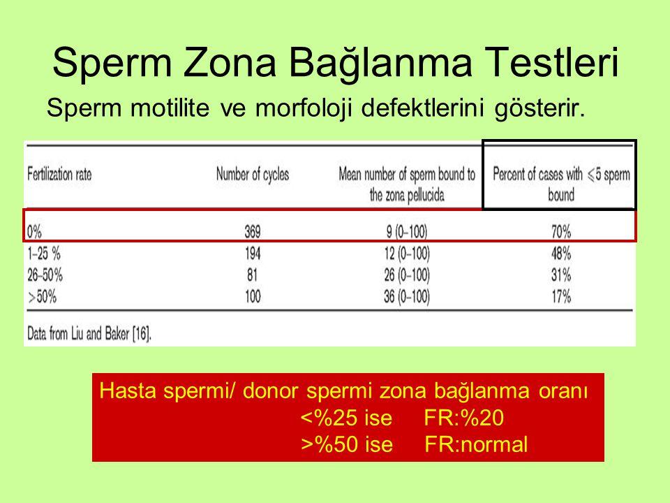 Sperm Zona Bağlanma Testleri