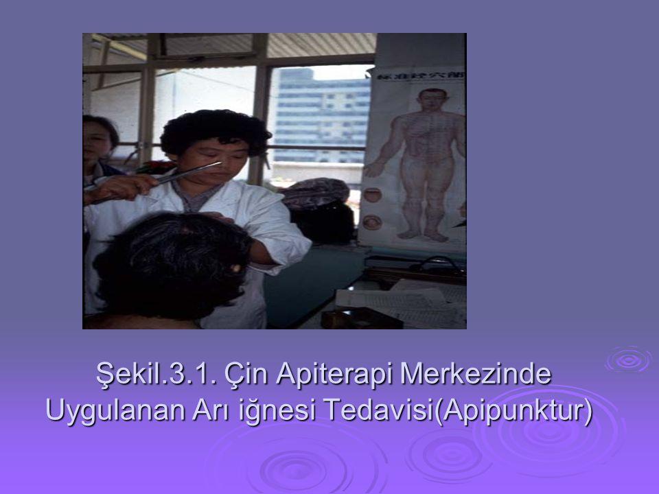 Şekil.3.1. Çin Apiterapi Merkezinde Uygulanan Arı iğnesi Tedavisi(Apipunktur)