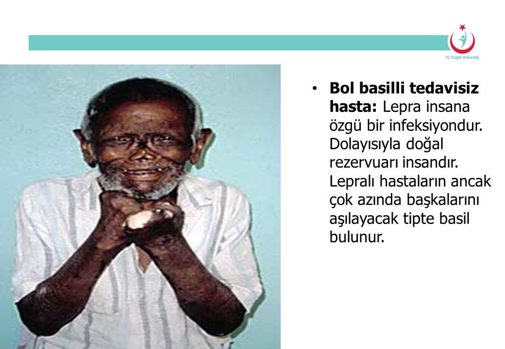 Bol basilli tedavisiz hasta: Lepra insana özgü bir infeksiyondur