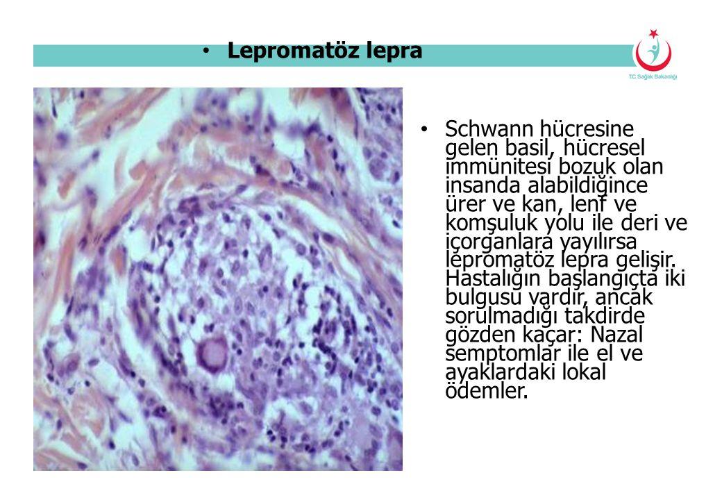 Lepromatöz lepra