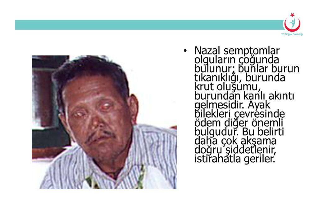 Nazal semptomlar olguların çoğunda bulunur; bunlar burun tıkanıklığı, burunda krut oluşumu, burundan kanlı akıntı gelmesidir.