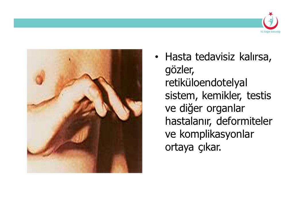 Hasta tedavisiz kalırsa, gözler, retiküloendotelyal sistem, kemikler, testis ve diğer organlar hastalanır, deformiteler ve komplikasyonlar ortaya çıkar.