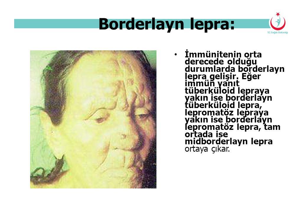 Borderlayn lepra: