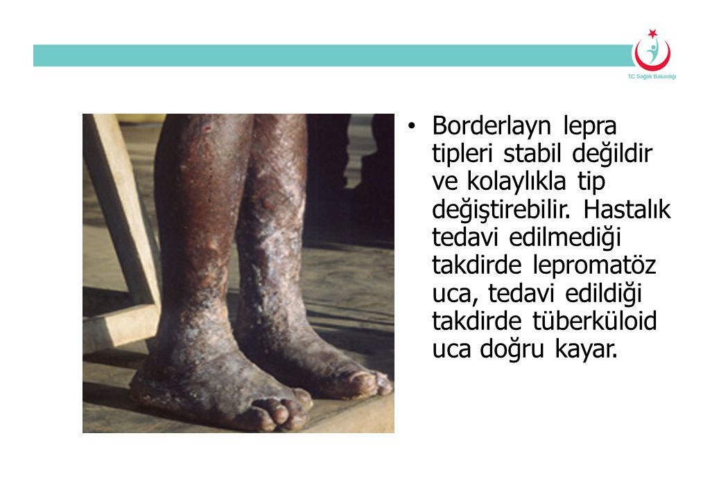 Borderlayn lepra tipleri stabil değildir ve kolaylıkla tip değiştirebilir.