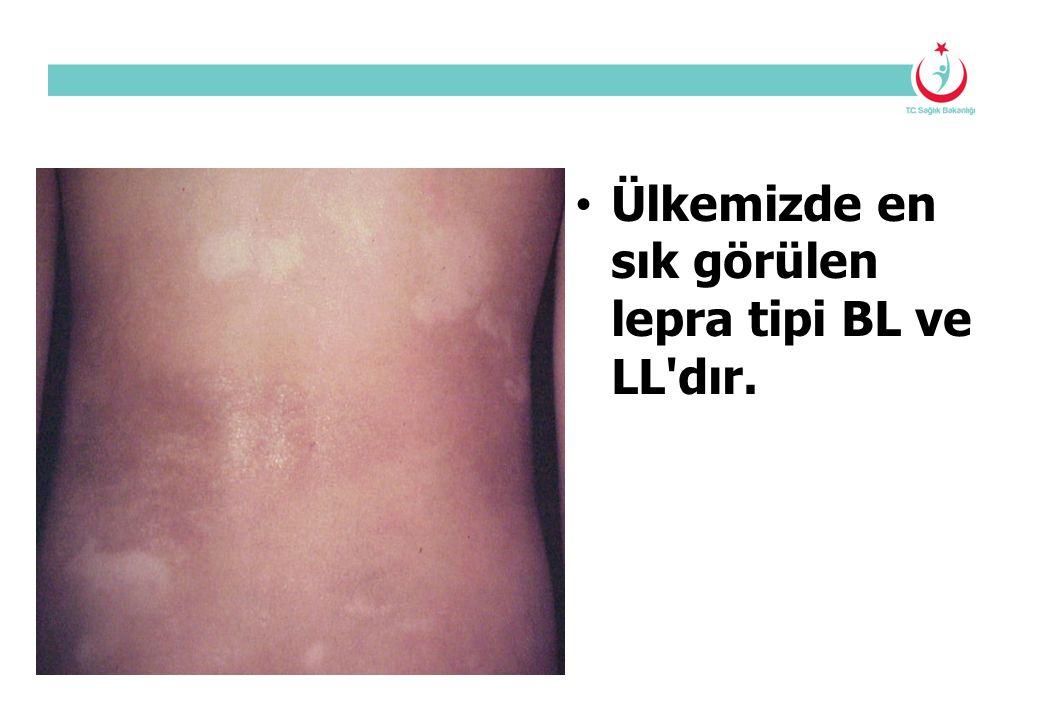 Ülkemizde en sık görülen lepra tipi BL ve LL dır.