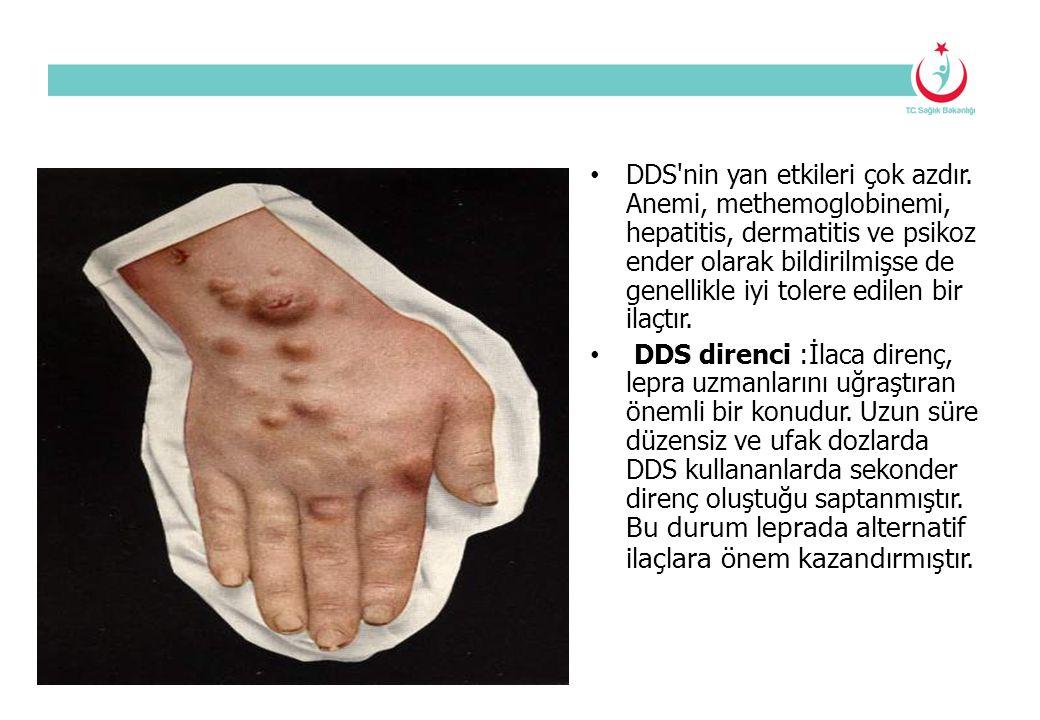 DDS nin yan etkileri çok azdır