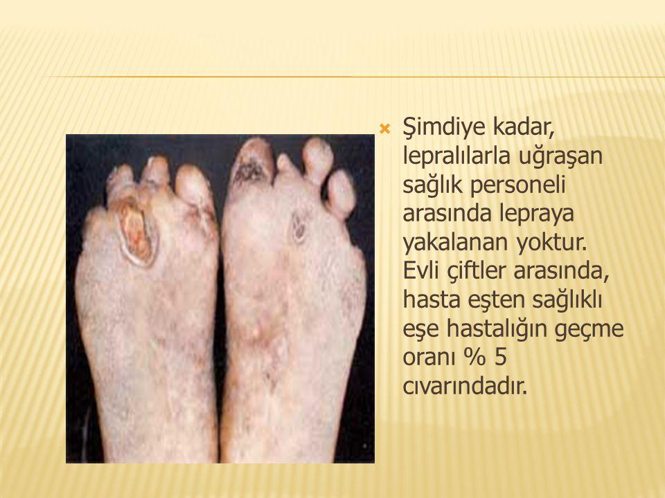 Şimdiye kadar, lepralılarla uğraşan sağlık personeli arasında lepraya yakalanan yoktur.