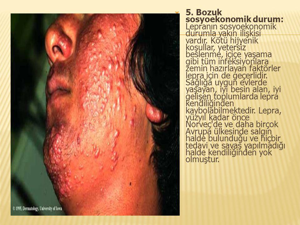 5. Bozuk sosyoekonomik durum: Lepranın sosyoekonomik durumla yakın ilişkisi vardır.