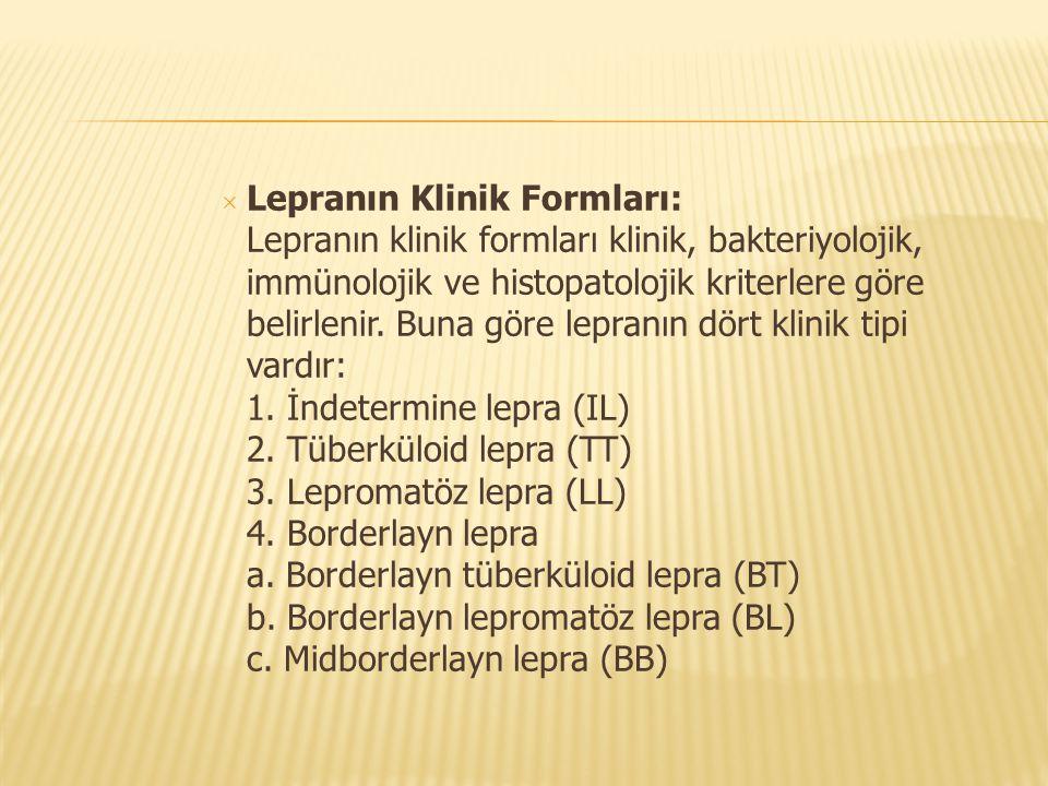 Lepranın Klinik Formları: Lepranın klinik formları klinik, bakteriyolojik, immünolojik ve histopatolojik kriterlere göre belirlenir.