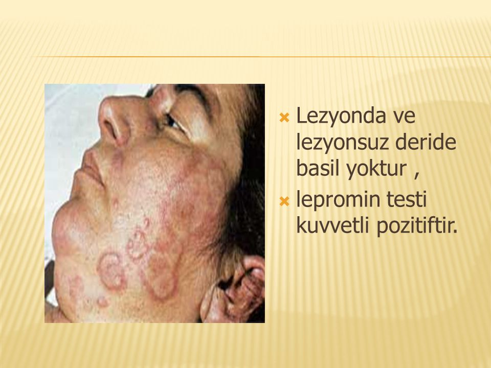 Lezyonda ve lezyonsuz deride basil yoktur ,