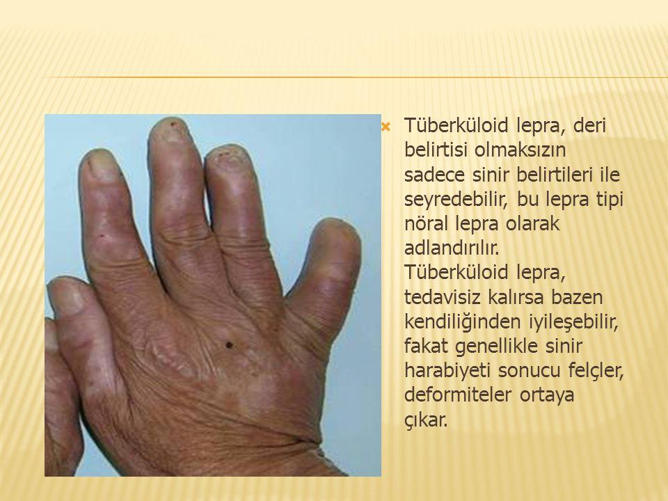 Tüberküloid lepra, deri belirtisi olmaksızın sadece sinir belirtileri ile seyredebilir, bu lepra tipi nöral lepra olarak adlandırılır.