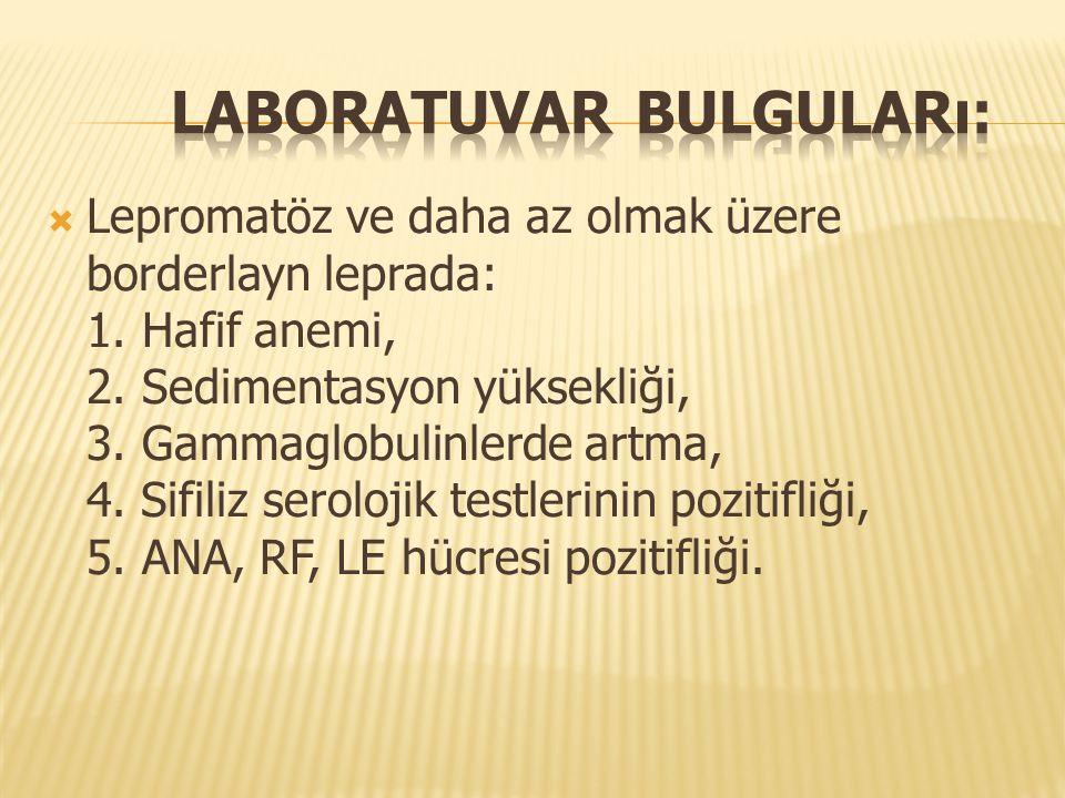Laboratuvar bulguları: