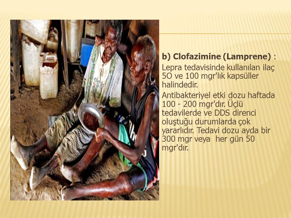 b) Clofazimine (Lamprene) :