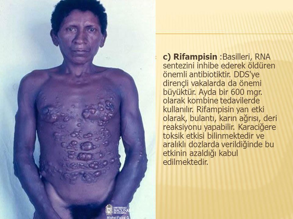 c) Rifampisin :Basilleri, RNA sentezini inhibe ederek öldüren önemli antibiotiktir.