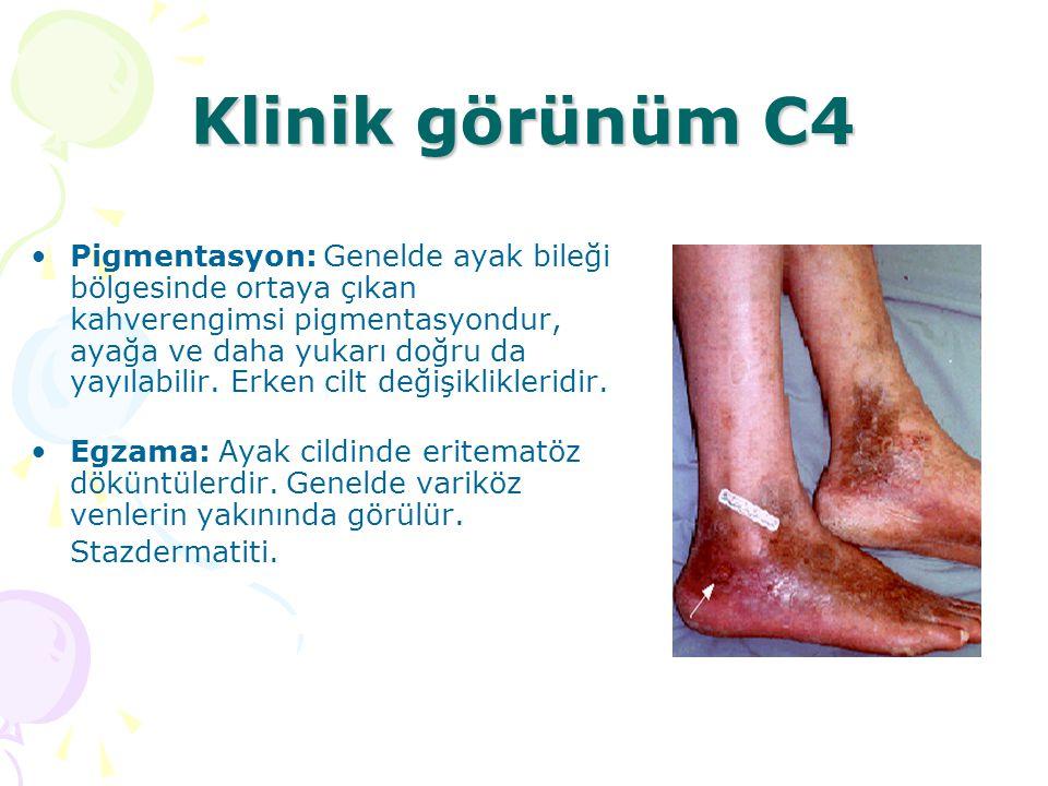 Klinik görünüm C4