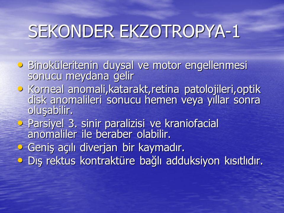 SEKONDER EKZOTROPYA-1 Binoküleritenin duysal ve motor engellenmesi sonucu meydana gelir.