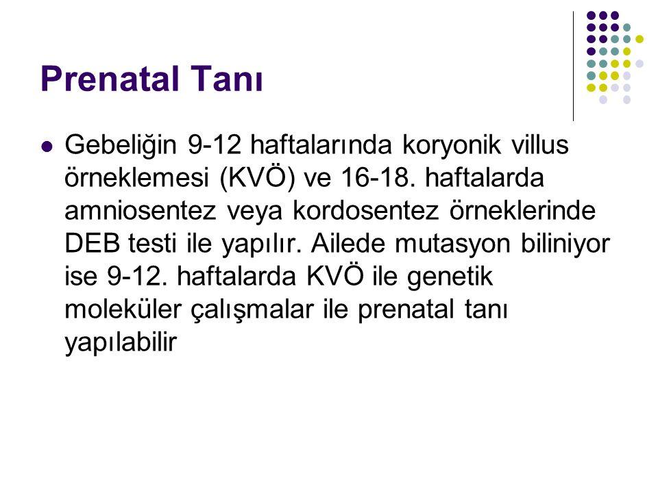 Prenatal Tanı