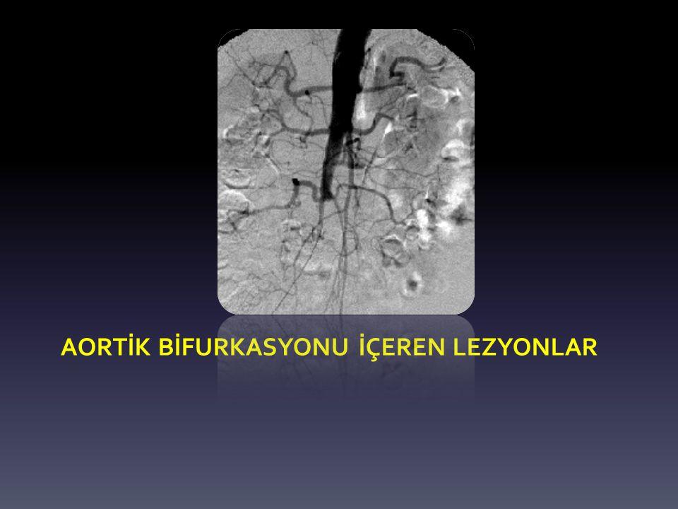 Aortİk bİfurkasyonu İçeren lezyonlar