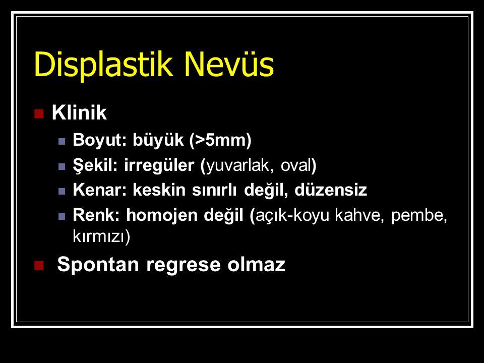 Displastik Nevüs Klinik Spontan regrese olmaz Boyut: büyük (>5mm)
