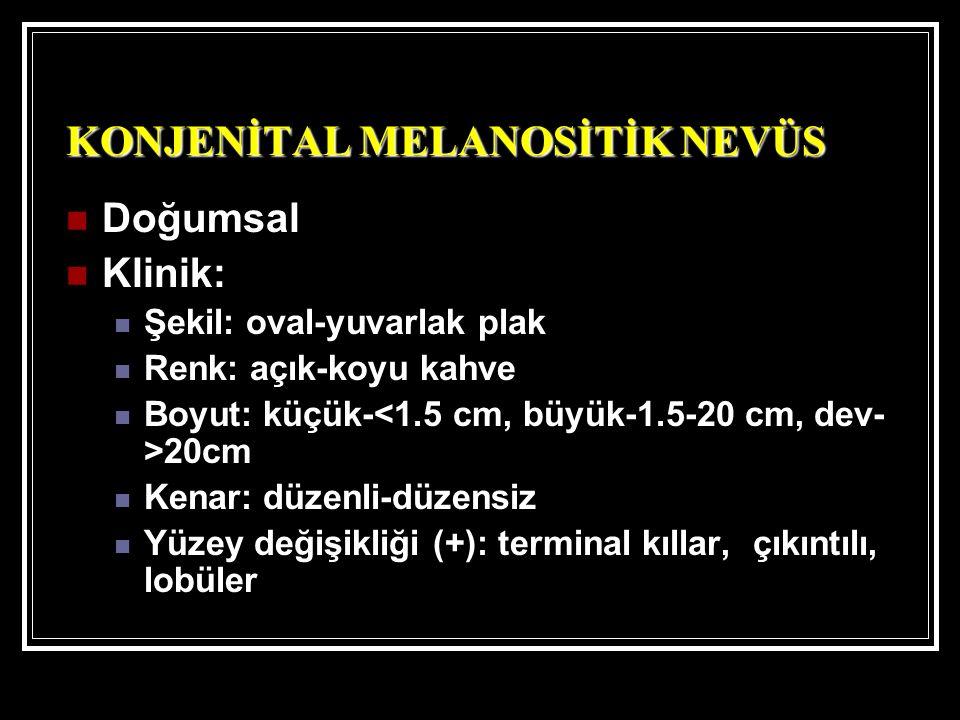 KONJENİTAL MELANOSİTİK NEVÜS