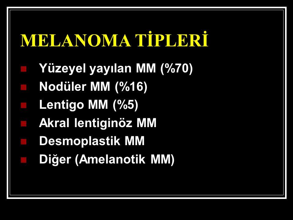 MELANOMA TİPLERİ Yüzeyel yayılan MM (%70) Nodüler MM (%16)