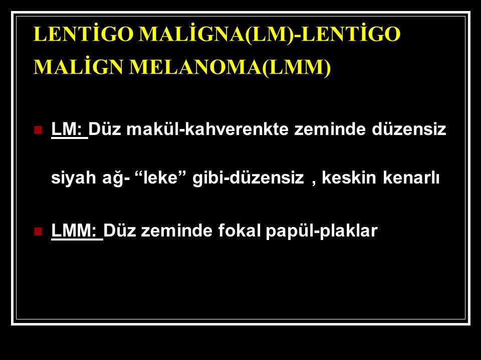 LENTİGO MALİGNA(LM)-LENTİGO MALİGN MELANOMA(LMM)