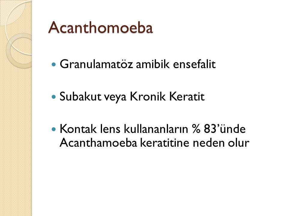 Acanthomoeba Granulamatöz amibik ensefalit Subakut veya Kronik Keratit