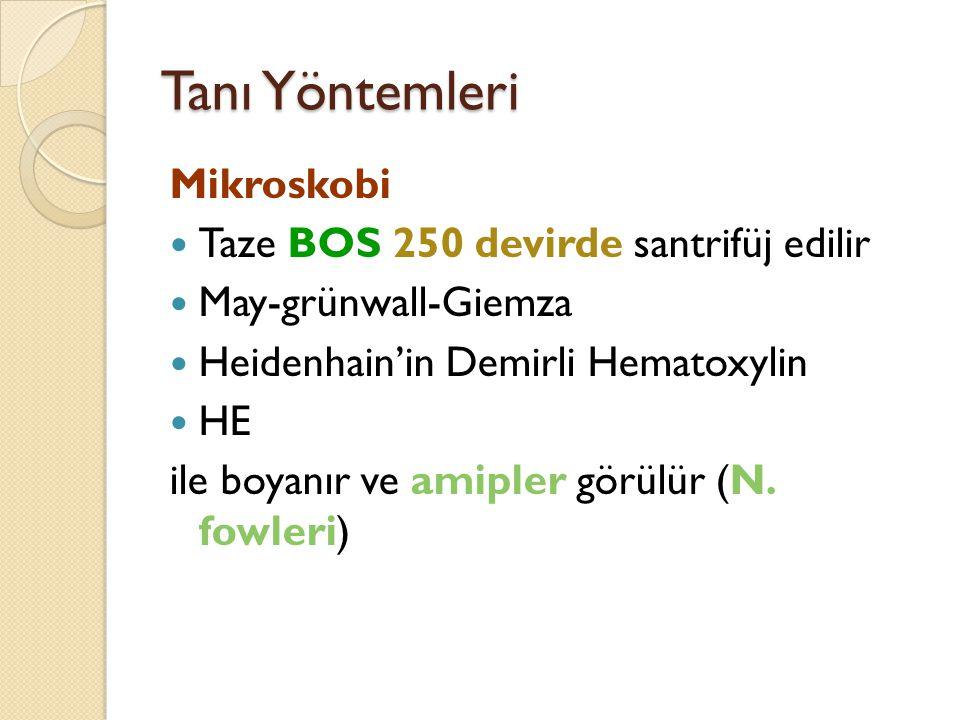 Tanı Yöntemleri Mikroskobi Taze BOS 250 devirde santrifüj edilir