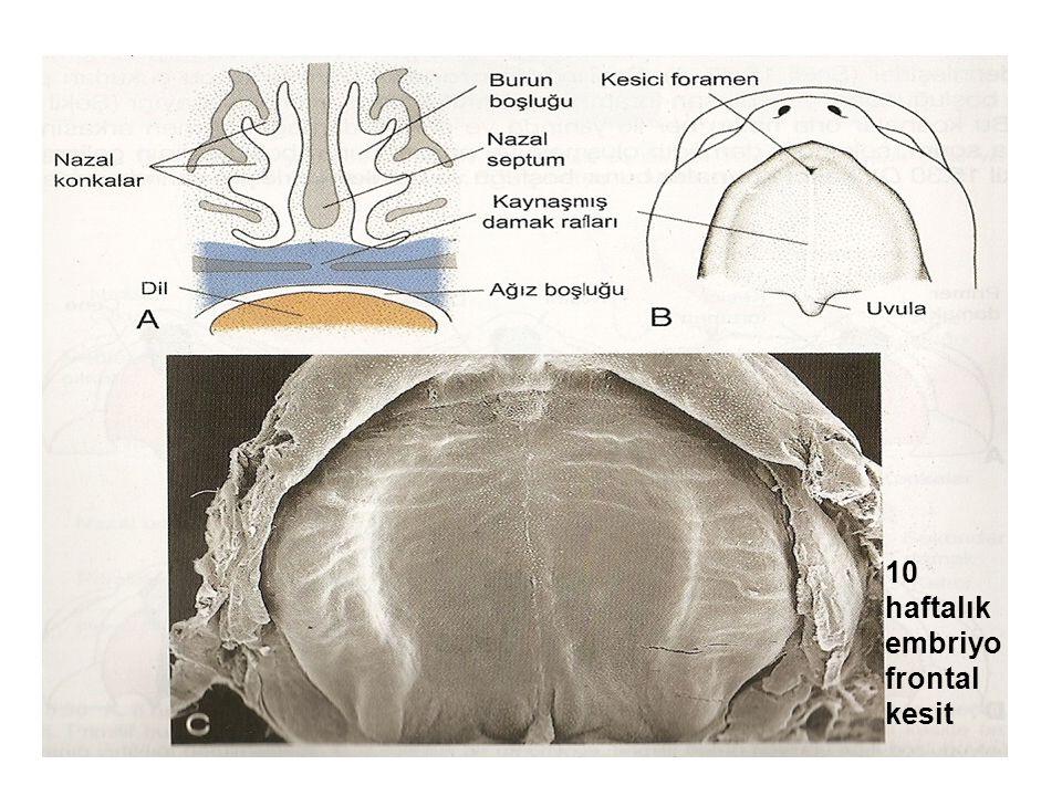 10 haftalık embriyo frontal kesit
