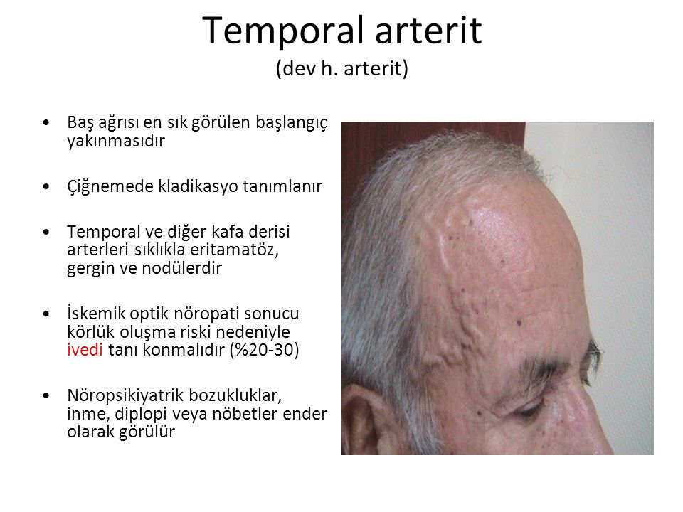 Temporal arterit (dev h. arterit)