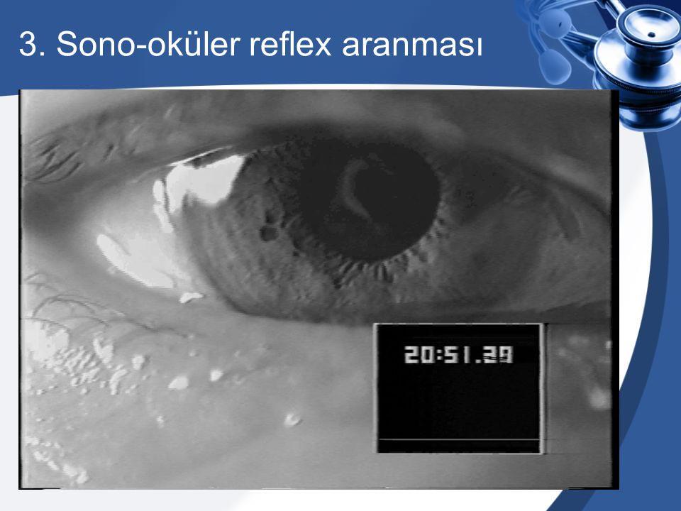 3. Sono-oküler reflex aranması
