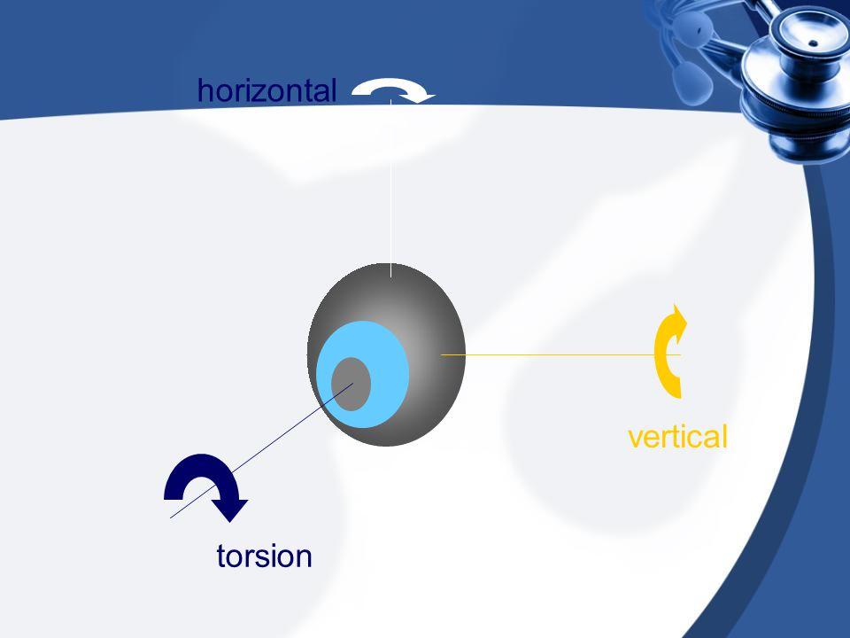 horizontal vertical torsion