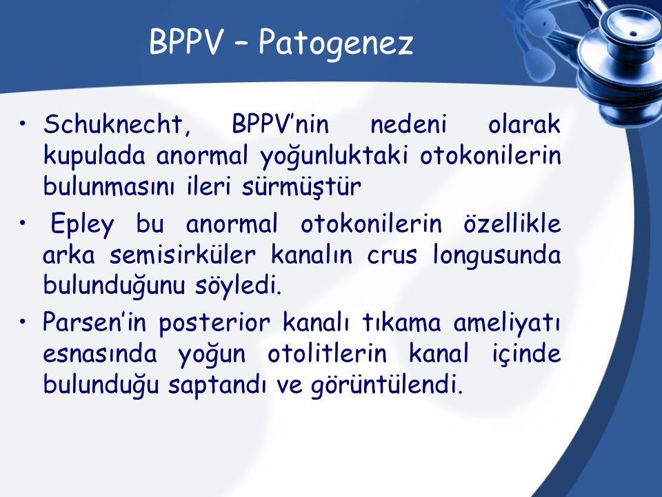 BPPV – Patogenez Schuknecht, BPPV'nin nedeni olarak kupulada anormal yoğunluktaki otokonilerin bulunmasını ileri sürmüştür.