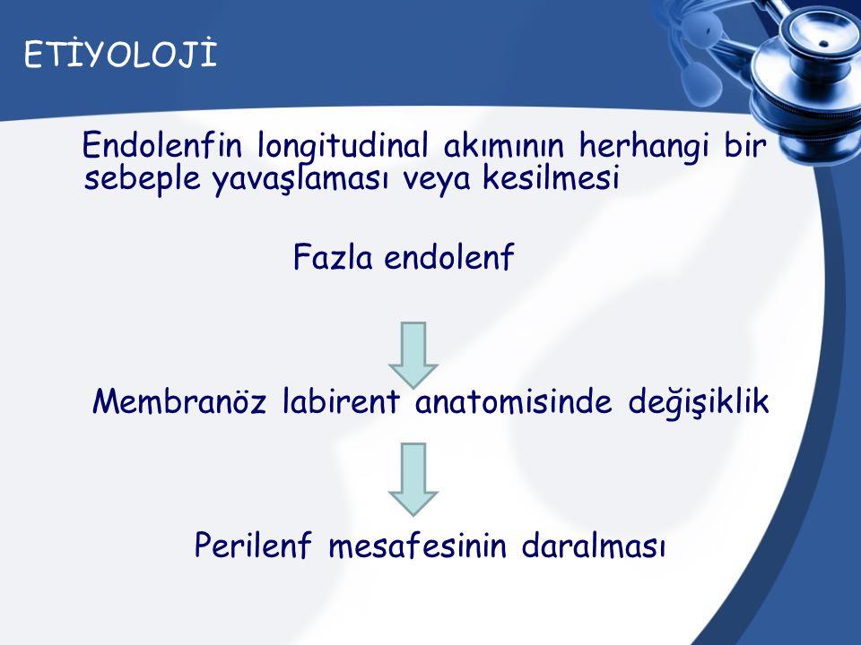Membranöz labirent anatomisinde değişiklik