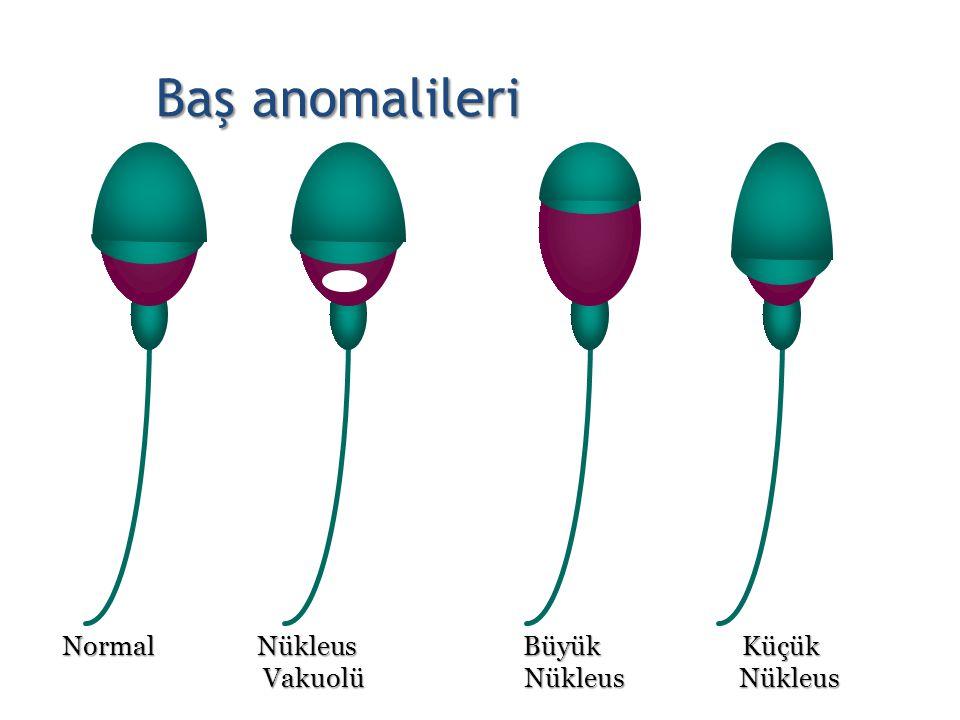 Baş anomalileri Normal Nükleus Büyük Küçük.