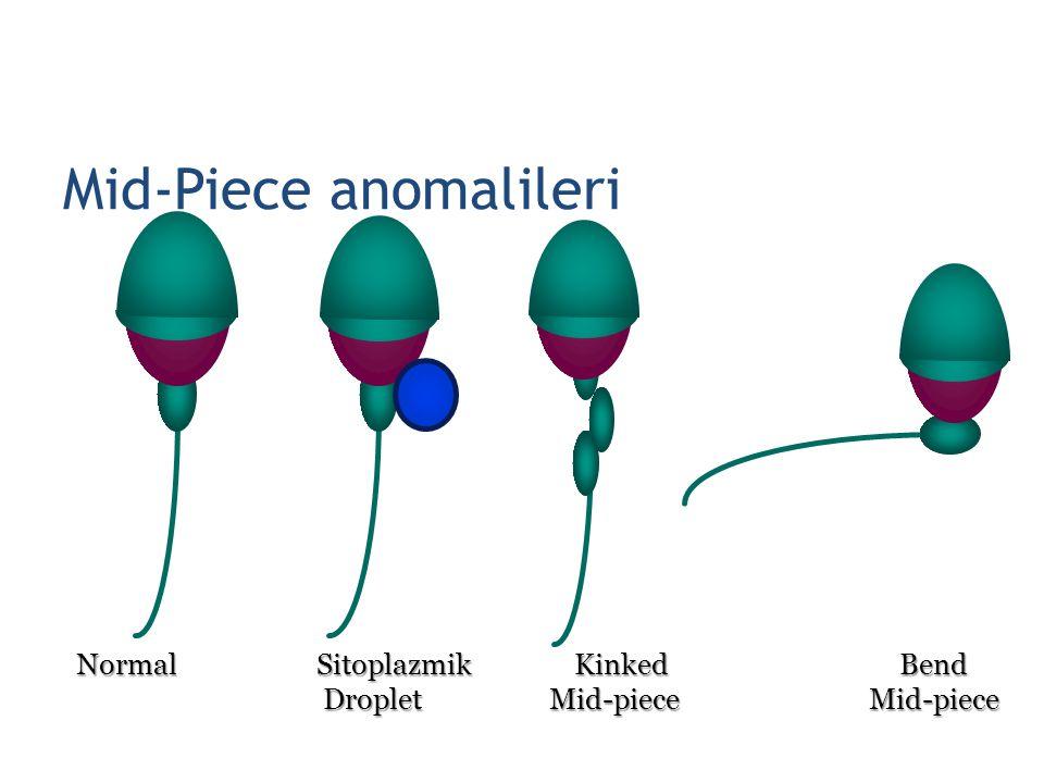 Mid-Piece anomalileri