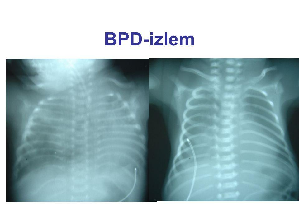 BPD-izlem