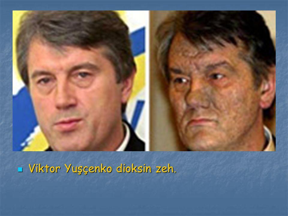 Viktor Yuşçenko dioksin zeh.