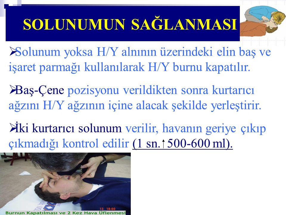 SOLUNUMUN SAĞLANMASI Solunum yoksa H/Y alnının üzerindeki elin baş ve işaret parmağı kullanılarak H/Y burnu kapatılır.