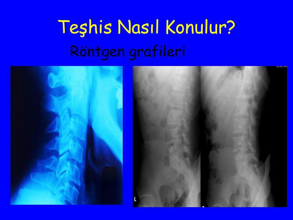 Teşhis Nasıl Konulur Röntgen grafileri
