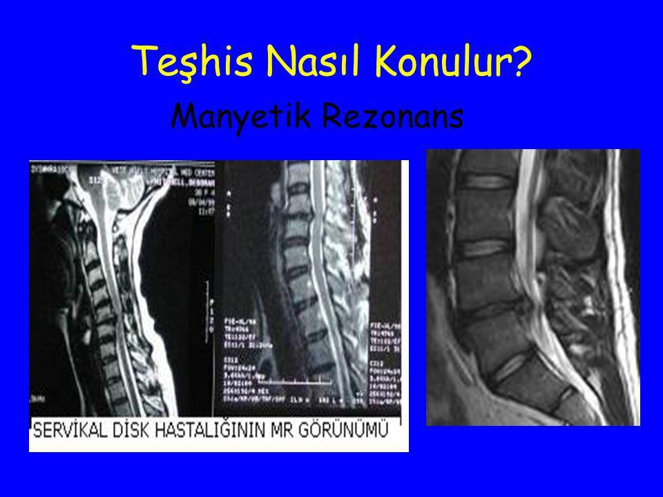 Teşhis Nasıl Konulur Manyetik Rezonans