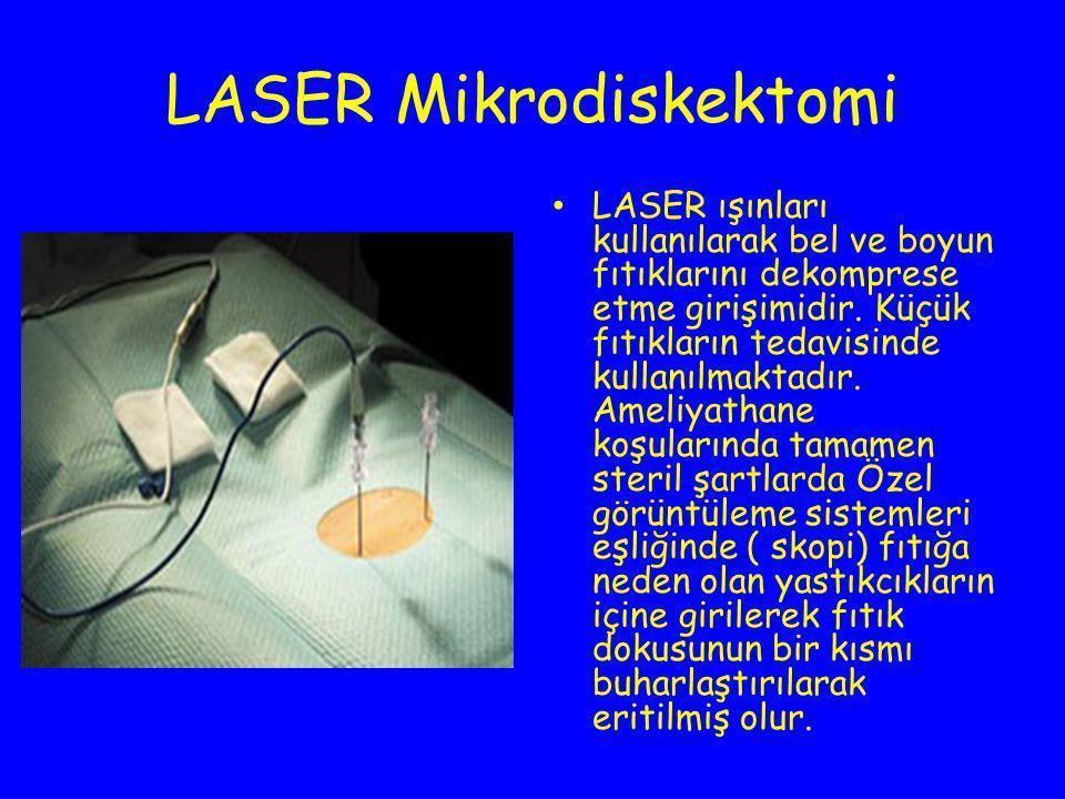LASER Mikrodiskektomi