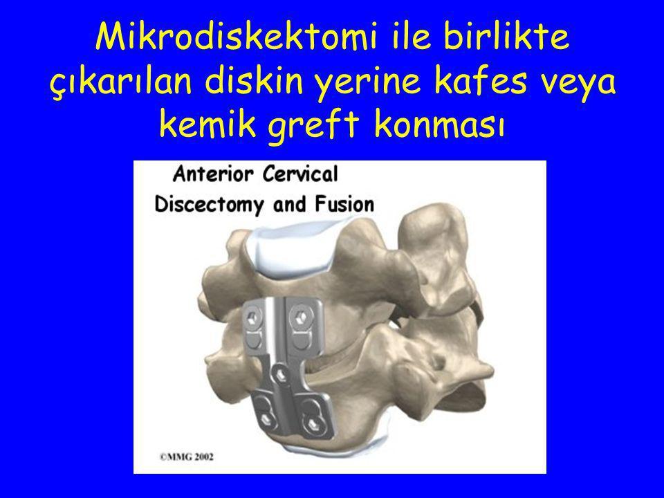 Mikrodiskektomi ile birlikte çıkarılan diskin yerine kafes veya kemik greft konması