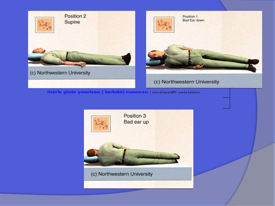 Hain'in gövde yuvarlama ( barbekü) manevrası : Lateral kanal BPPV 'sunda kullanılır.