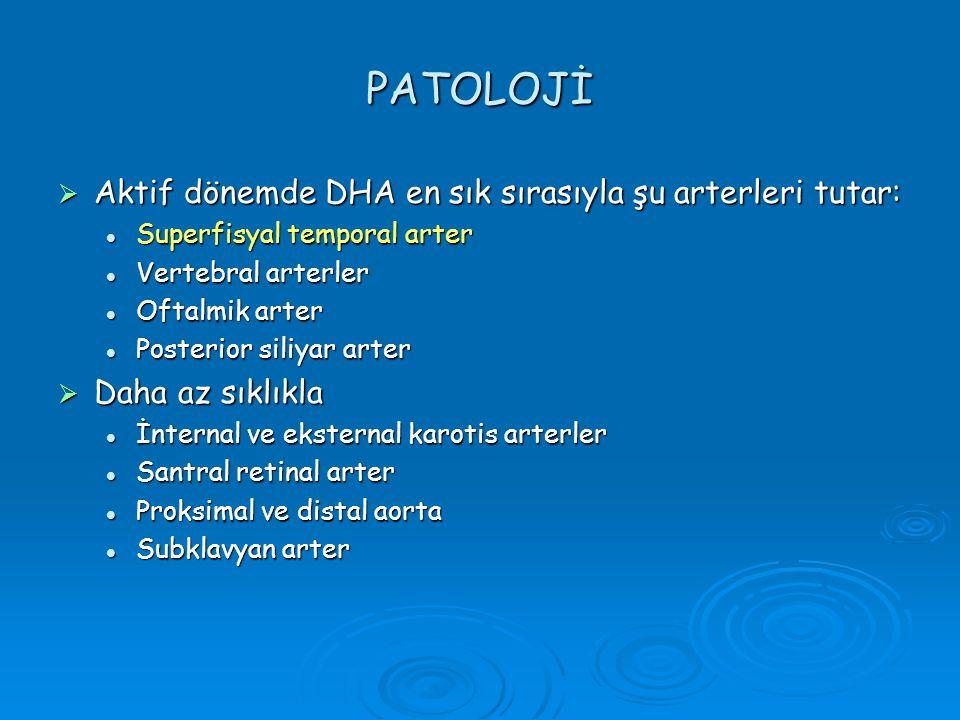 PATOLOJİ Aktif dönemde DHA en sık sırasıyla şu arterleri tutar: