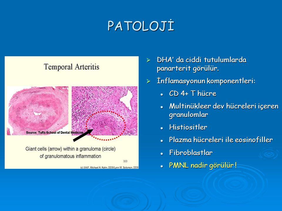 PATOLOJİ DHA' da ciddi tutulumlarda panarterit görülür.