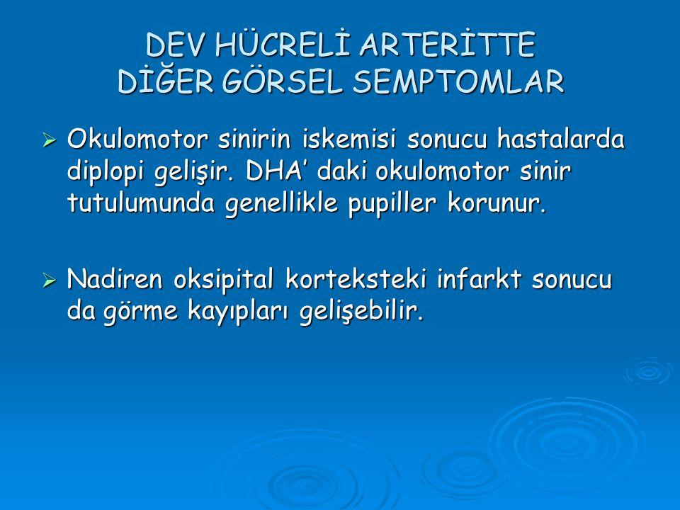 DEV HÜCRELİ ARTERİTTE DİĞER GÖRSEL SEMPTOMLAR
