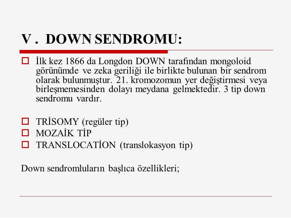 V . DOWN SENDROMU: